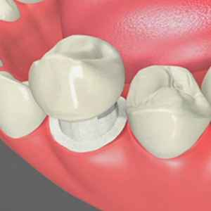Dental Crowns Westbury Dental
